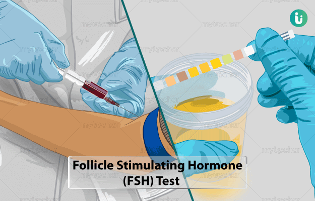 Controlling Your Menstruation With Follicle Stimulating Hormones FSH